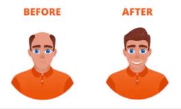 Minoxidil Result
